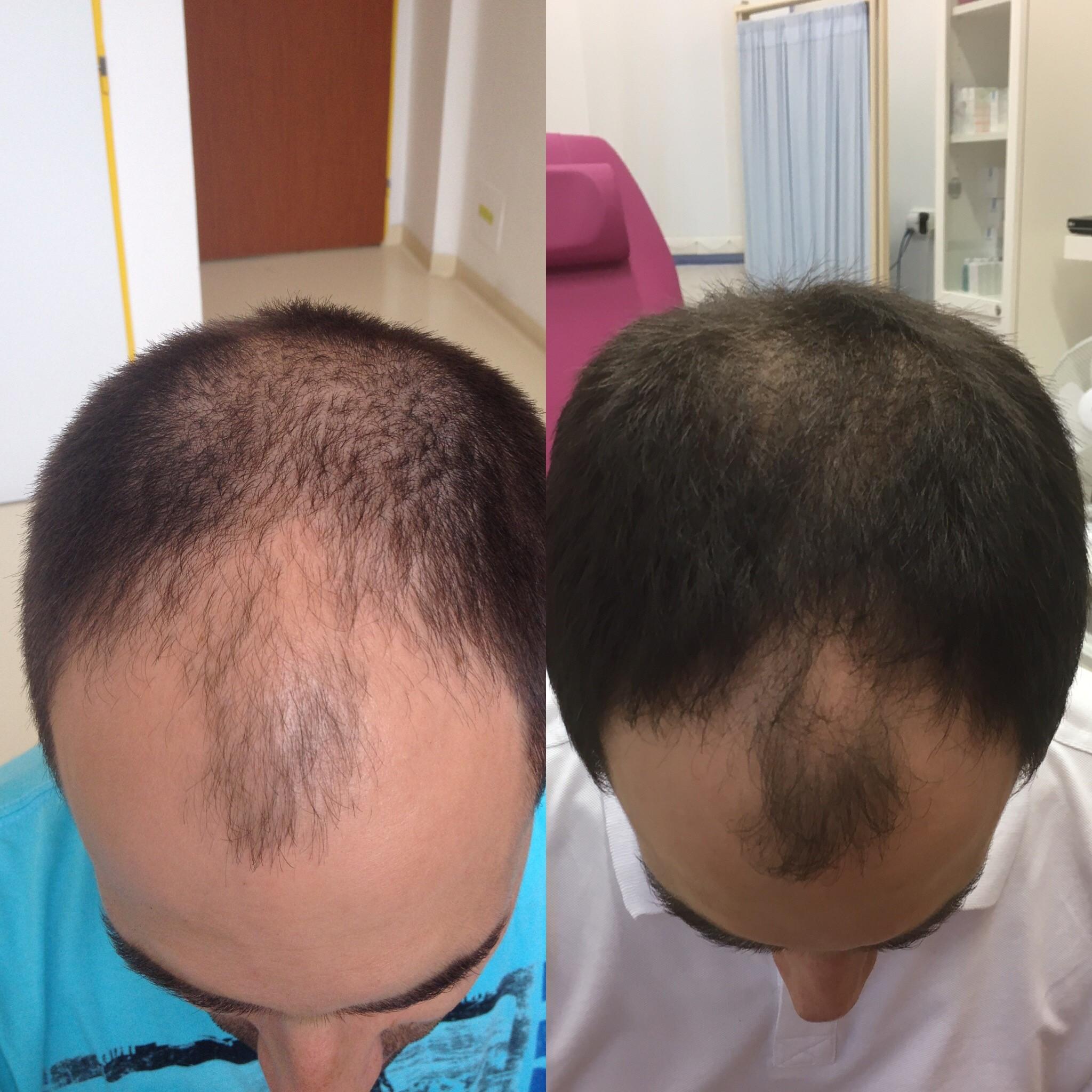 Léčba alopecie