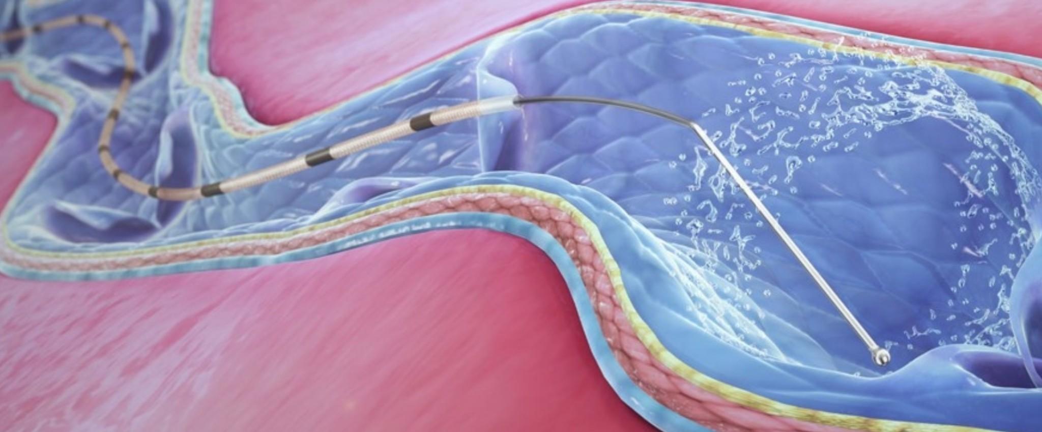 ClariVein odstranění křečových žil
