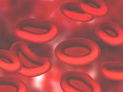 Léčba krevní plazmou